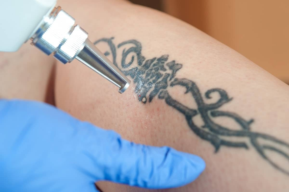 Is Laser Tattoo Removal Expensive